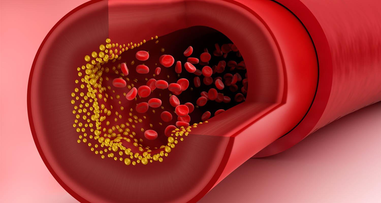 giảm hàm lượng cholesterol