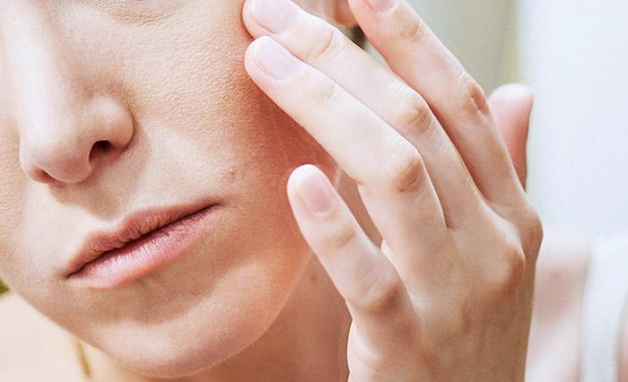 Da bị khô nứt nẻ do độ ẩm trong phòng điều hòa lại thấp